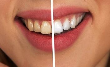 białe i równe zęby w Lasermed