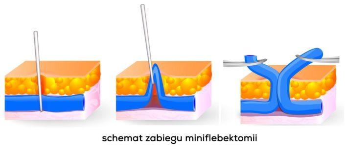 miniflebektomia