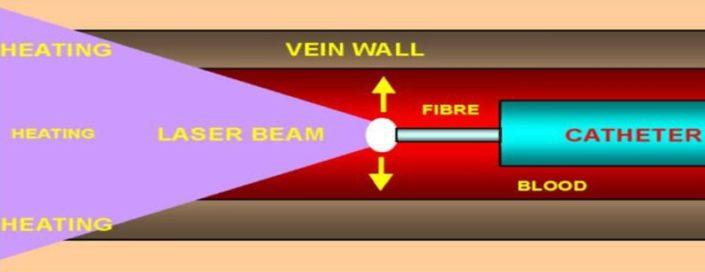 Schemat działania laserowego usuwania żylaków