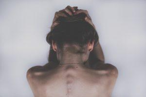 Jak leczyć łysienie, zakola i wypadające włosy - komórki macierzyste