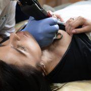 Laserowy lifting biustu