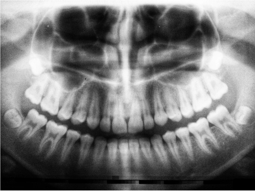 zdjęcie RTG zębów