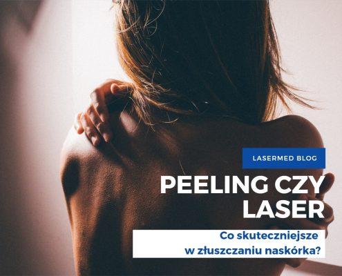 peeling czy laser