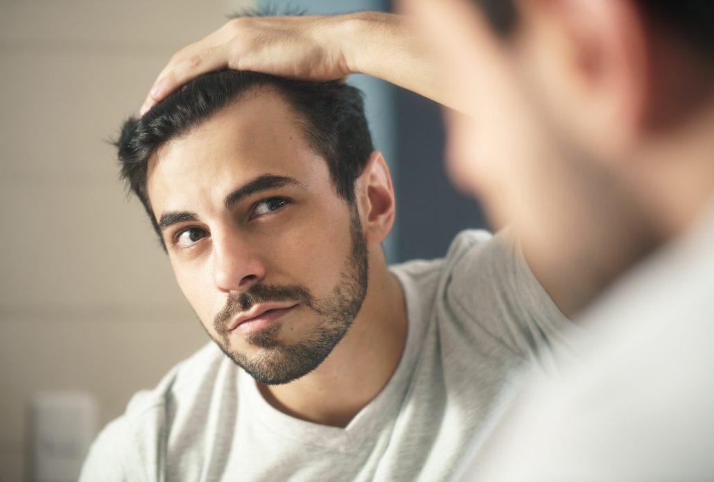 czy fibryna jest skuteczna na łysienie? - mężczyzna z zakolami