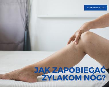 Jak zapobiegać żylakom nóg - noga