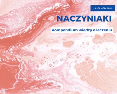 Naczyniaki - kompendium wiedzy o leczeniu