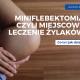 Miniflebektomia, czyli miejscowe leczenie żylaków. - żylaki