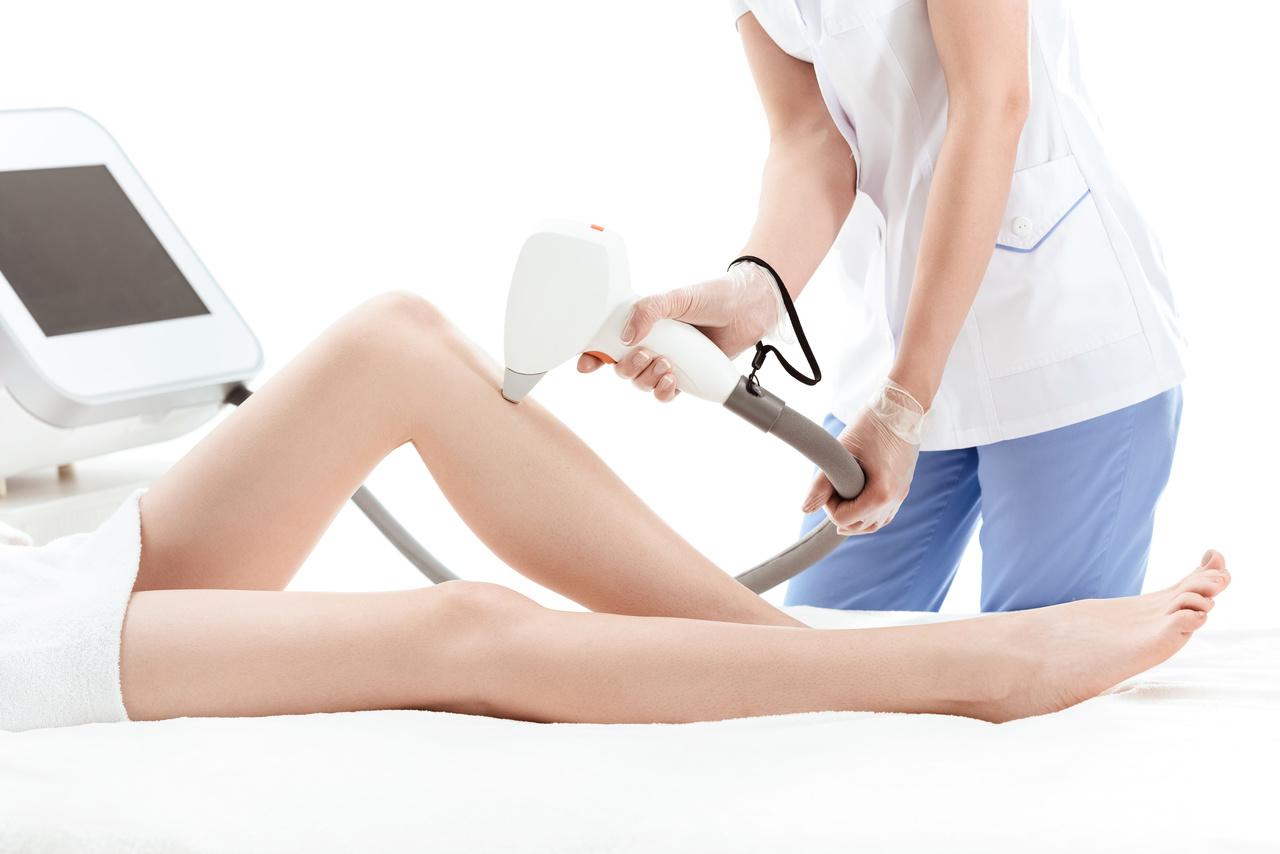 laserowe usuwanie żylaków - kosmetyka estetyczna nóg