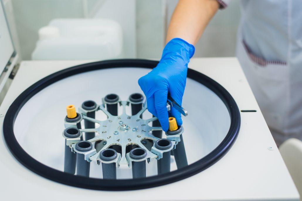 fibryna bogatopłytkowa w ortopedii nowy targ - rozdzielanie składników krwi