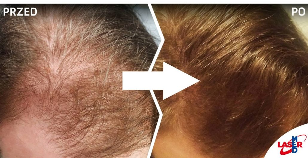 problem z łysieniem