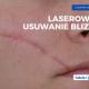 Laserowe usuwanie blizn Nowy Targ